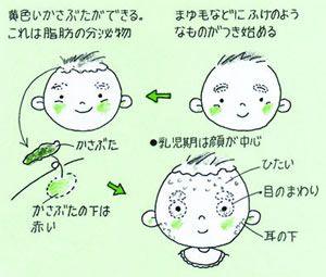 脂漏性皮膚炎の治療法
