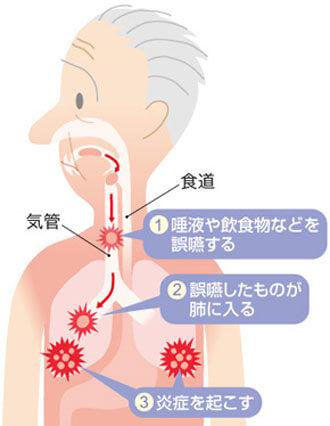 誤えん性肺炎の原因
