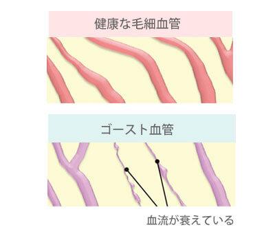 ゴースト血管の原因