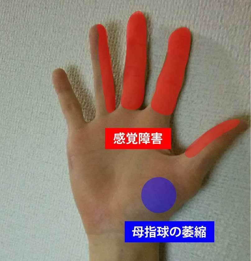 手根管症候群の症状①