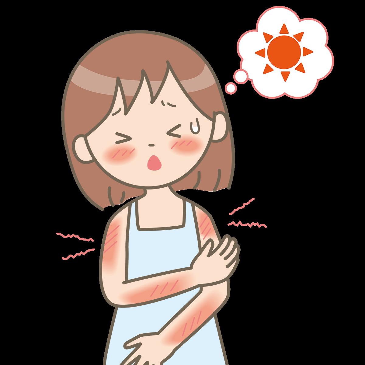 sunburn-hurts-skin