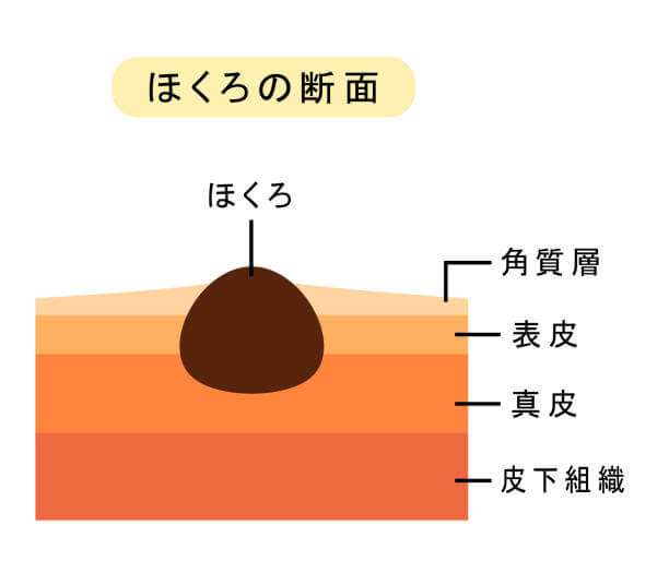 The structure of the mole.