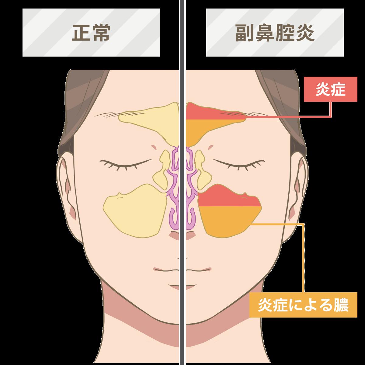 sinusitis-symptom-sick